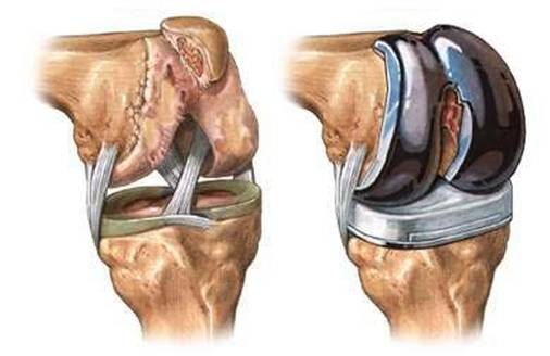 Стоимость протез коленный сустав титанov внутрисуставное лазерное облучение